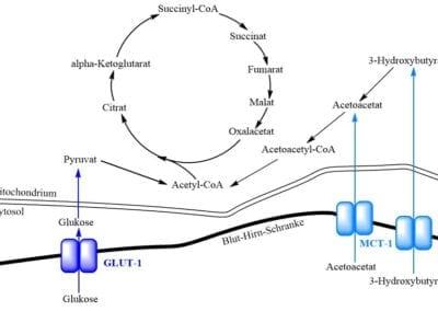 Ketogene Diät bei Glukose-Transporter-Defekt